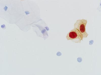 Abnormal cervical cells staining positive for CINtec PLUS test. (PRNewsFoto/Ventana Medical Systems, Inc.) (PRNewsFoto/VENTANA MEDICAL SYSTEMS, INC.)