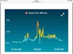 Fitbit aplicacion que muestra el inicio de la arritmia cardiaca