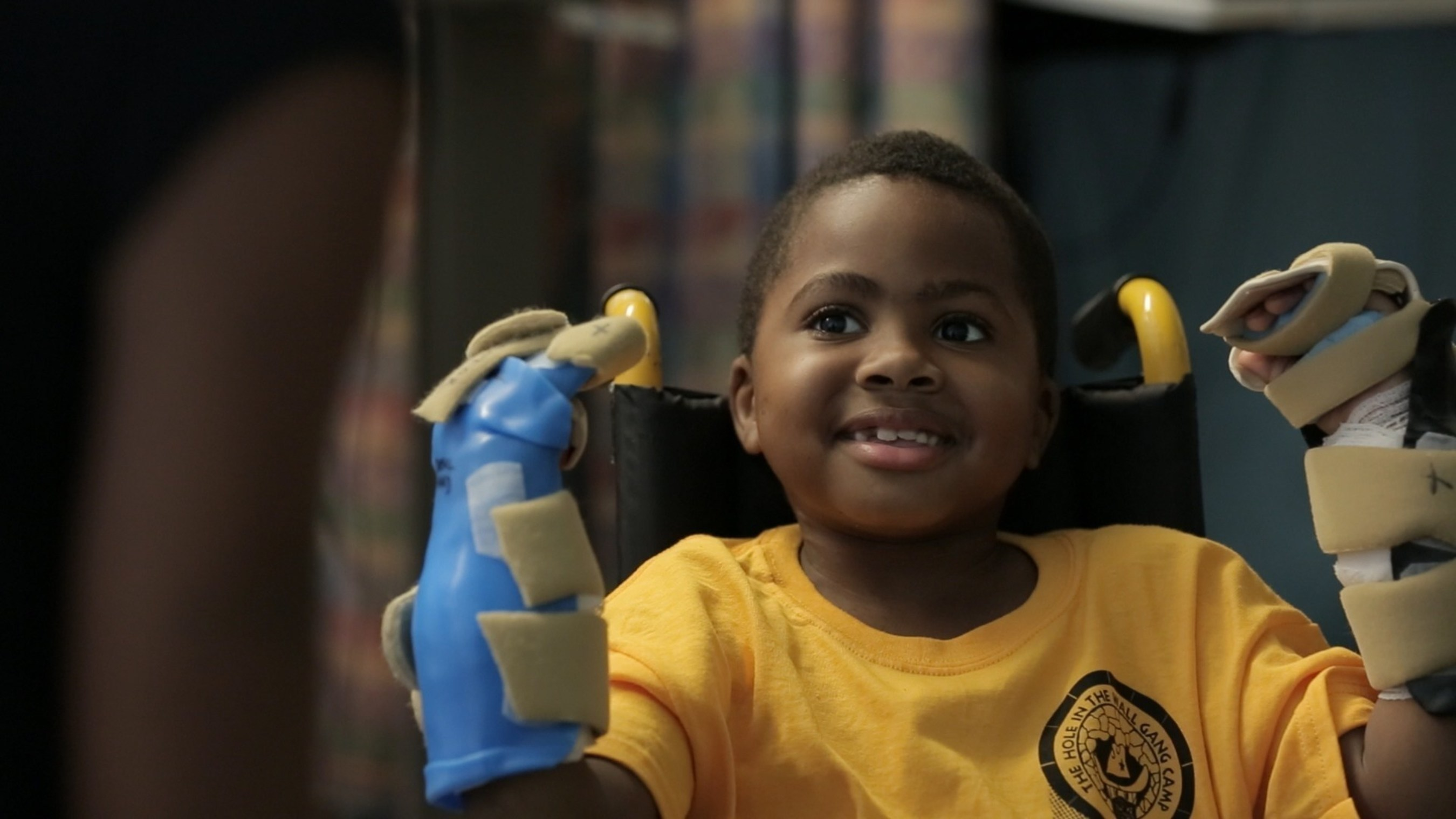 Surgeons at The Children's Hospital of Philadelphia (CHOP) joined with colleagues from Penn Medicine recently to complete the world's first bilateral hand transplant on a child. Earlier this month, the surgical team successfully transplanted donor hands and forearms onto eight-year-old Zion Harvey who, several years earlier, had undergone amputation of his hands and feet and a kidney transplant following a serious infection.