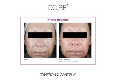 CO2RE Wrinkle Treatment