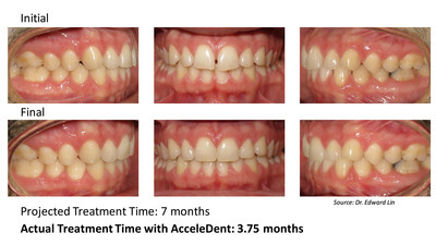 This 30-year-old male patient was treated by Dr. Edward Lin of Orthodontic Specialists in Green Bay, Wisconsin. The patient's treatment plan included aligners in conjunction with AcceleDent, the first and only FDA-cleared vibratory device that has been clinically proven to speed up braces and aligner treatment by as much as 50 percent and reduce the discomfort associated with orthodontic treatment. The patient presented as a class I with mild spacing and completed accelerated orthodontic treatment with...