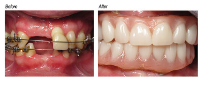Ectodermal dysplasia patient before and after being fitted with Heraeus' Mondial denture teeth.  (PRNewsFoto/Heraeus)