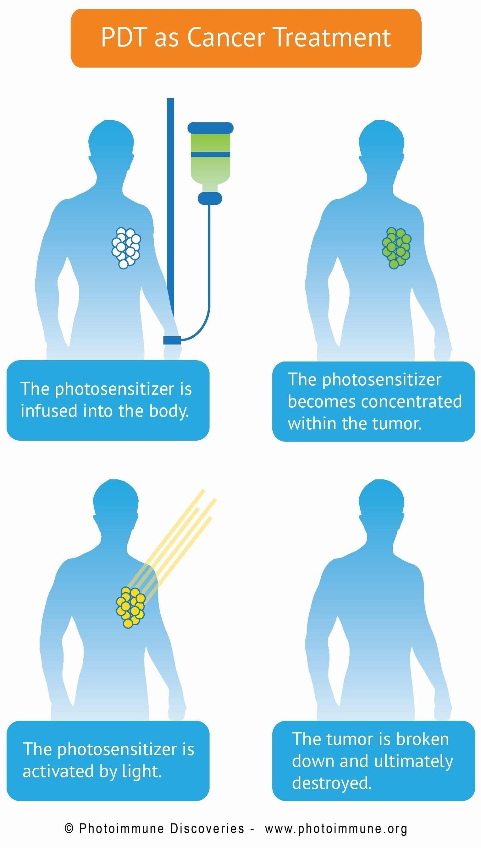Bremachlorin - PDT as a cancer treatment (PRNewsFoto/Photoimmune Discoveries) (PRNewsFoto/Photoimmune ...