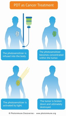 Bremachlorin - PDT as a cancer treatment (PRNewsFoto/Photoimmune Discoveries)
