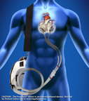 The SynCardia Total Artificial Heart has been implanted 125 times this year, surpassing the 125 SynCardia hearts implanted in all of 2012. The Freedom portable driver is the world's first wearable power supply for the SynCardia TotalArtificial Heart.  (PRNewsFoto/SynCardia Systems, Inc.)