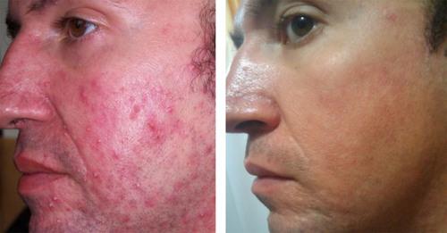 Breakthrough Ultrasonic Acne Treatment Ready for Market Launch