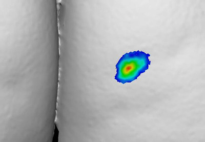 Patient 1057: Buttock Dimple at Day 1.  (PRNewsFoto/Auxilium Pharmaceuticals, Inc.)
