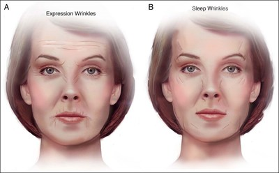 (A) Common expression wrinkles. (B) Common sleep wrinkles.