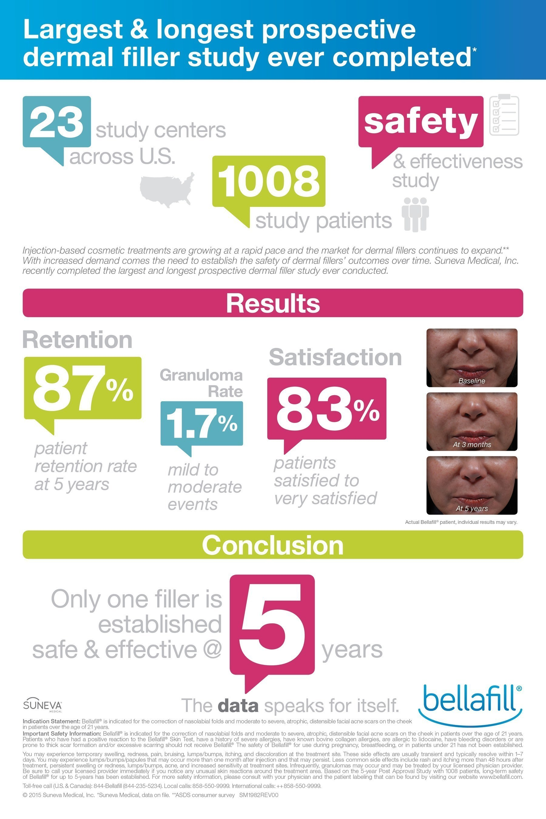 Bellafill is the first and only FDA approved dermal filler indicated for the correction of nasolabial folds ...