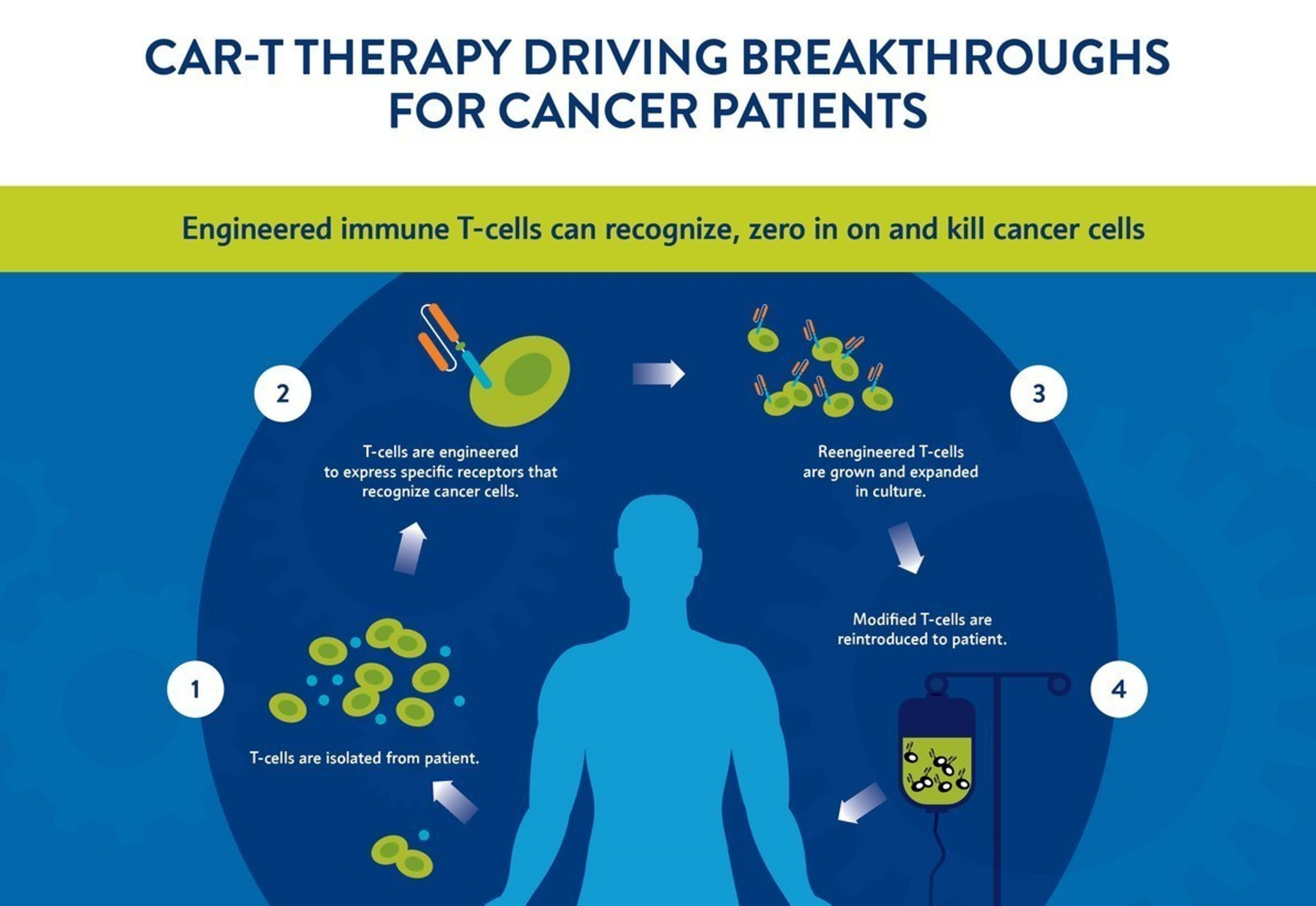 Engineered immune T-cells can recognize, zero in on and kill cancer cells.