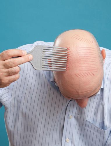 The Balding Handbook.  (PRNewsFoto/Eckhartz Press)