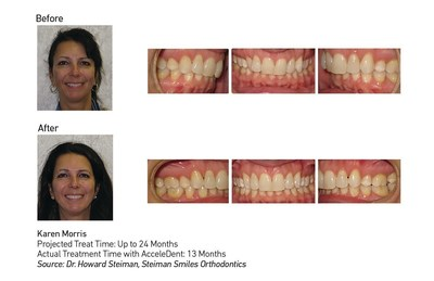 Karen Morris used AcceleDent in conjunction with her orthodontic treatment to correct crowding and a deep overbite. Her orthodontist, Dr. Howard Steiman of Steiman Smiles Orthodontics in Ajax, Ontario, recommended that she use AcceleDent to reduce the treatment time from an estimated 24 months to 13 months and to alleviate pain during treatment. AcceleDent is an FDA-cleared vibratory orthodontic device used in conjunction with braces or aligners to speed up orthodontic treatment by as much as 50 percent.