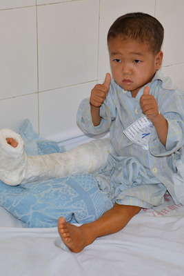 Child recovers in a Vietnamese clinic following surgery for club foot. Seven volunteer members of the AOFAS performed dozens of surgeries over a two-week period in June 2013 as part of a humanitarian trip. (Photo: Paul Docktor, MD, Denver)