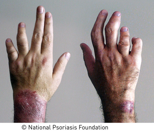According to the National Psoriasis Foundation, psoriatic arthritis affects up to 30 percent of people with psoriasis. Symptoms of psoriatic arthritis include swollen, sausage-like fingers and toes, pain and swelling over the tendons, nail changes, and pain, swelling and stiffness in the joints. If left untreated, psoriatic arthritis can be disabling.   (PRNewsFoto/National Psoriasis Foundation)