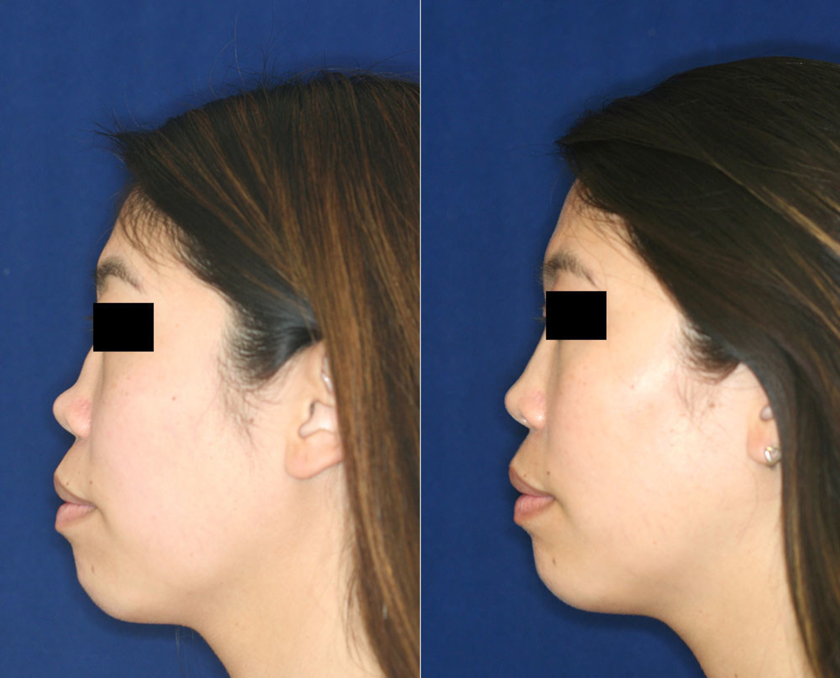 Permanent, Non-Surgical Nose Job: The Little Known, No-Knife Procedure