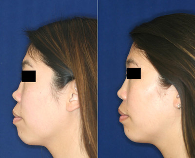 Permanent, non-surgical rhinoplasty before (left) and after