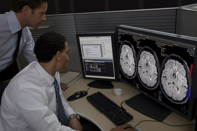 IntelliSpace Portal offers Longitudinal Brain Imaging (LoBI*), an application that has been optimized for the interpretation of brain MRI scan and aims to facilitate the longitudinal evaluation of neurological disorders helping clinicians to monitor disease progression. *Pending 510(k), not available for sale in the United States.