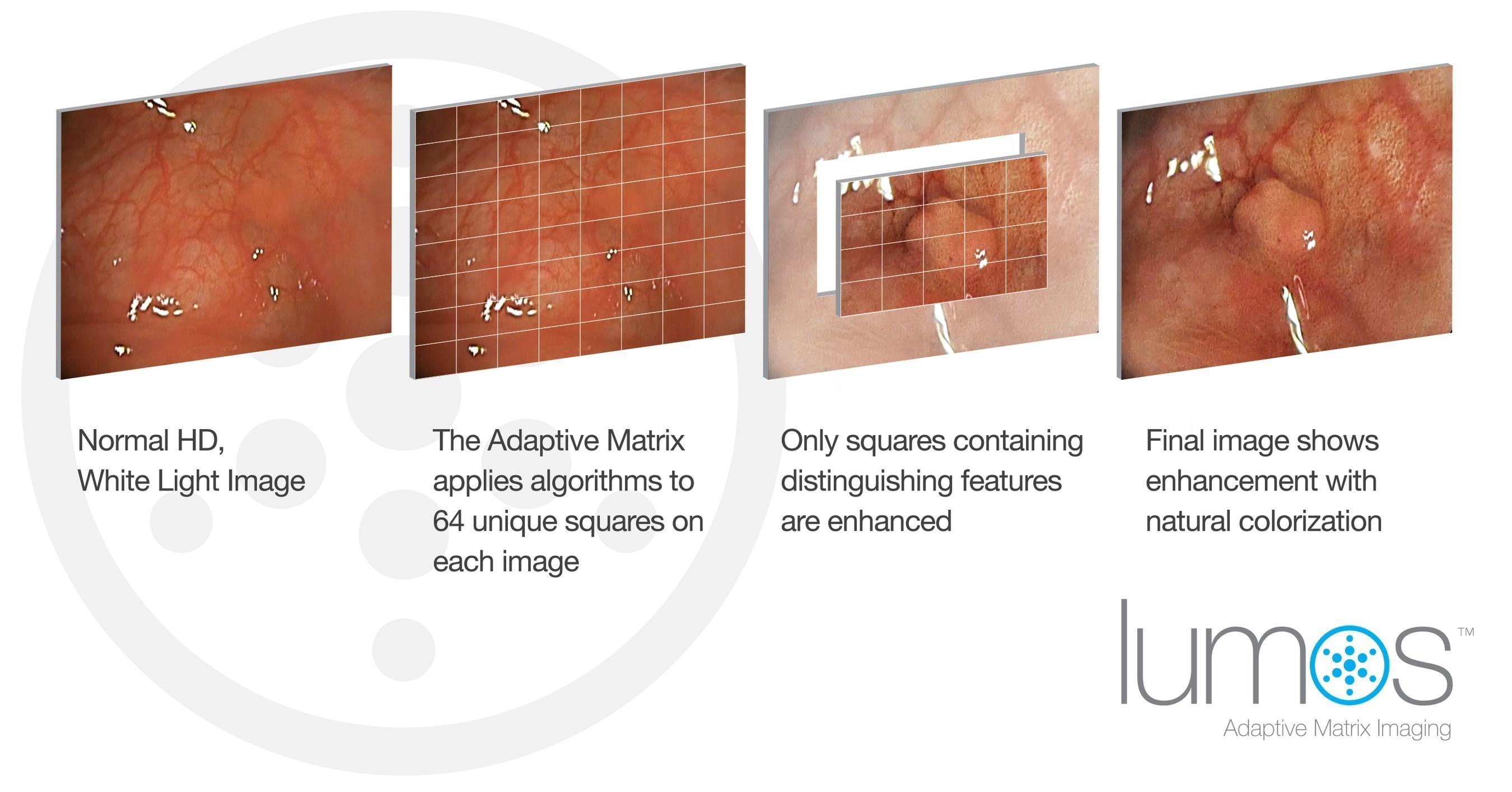Lumos(TM) with Adaptive Matrix Imaging by EndoChoice