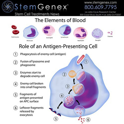 Today, over 23.5 million people suffer from over eighty different types of known autoimmune diseases. Unfortunately, treatment for those suffering from non-curable autoimmune diseases has been limited to slowing the spread of the diseases and controlling the symptoms. The illustration above shows the elements of the blood and the process in which our immune system attacks foreign antigens and removes them from our bodies. The same process happens with autoimmune disorders.
