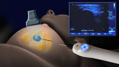 Illustration of IceSense3 Cryoablation System freezing a breast tumor