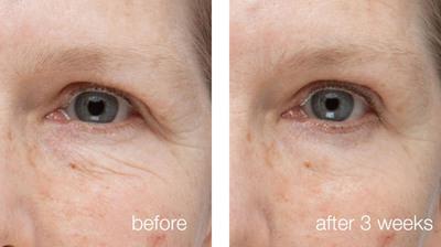 Dr. Will Kirby and Neutrogena® Dermatologics™ Help Women Transform Skin from Winter Dullness to Summer Glow