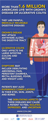 Infographic explaining Crohn's disease and ulcerative colitis