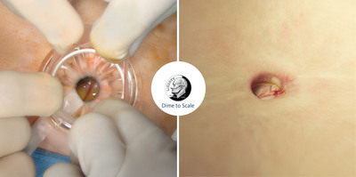 The image on the left shows a 12 - 15mm retracted incision used to perform the LESS cholecystectomy. The image on the right shows a LESS incision immediately post operation. A dime, measuring 18mm, provides a reference of scale.  (PRNewsFoto/Olympus)