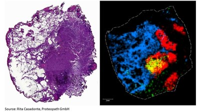 HE Stain of Lung Carcinoma (left) and MALDI Molecular Image of the Lung Carcinoma (right). Source: Rita Casadonte, Proteopath GmbH, Trier, Germany