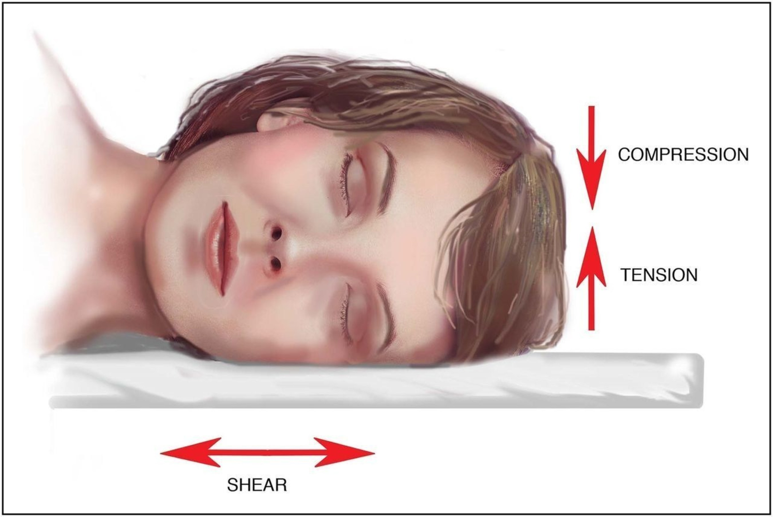 External forces (including compression, tension, and shear) act on facial tissue in stomach or side sleep positions.