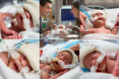 A week prior to the discharge of the final sextuplet, the Plauche' quintuplets entered the world at Texas Children's Pavilion for Women. The babies are the first quintuplets born in Houston this year and the first-ever recorded quintuplets in their native Lake Charles, La.