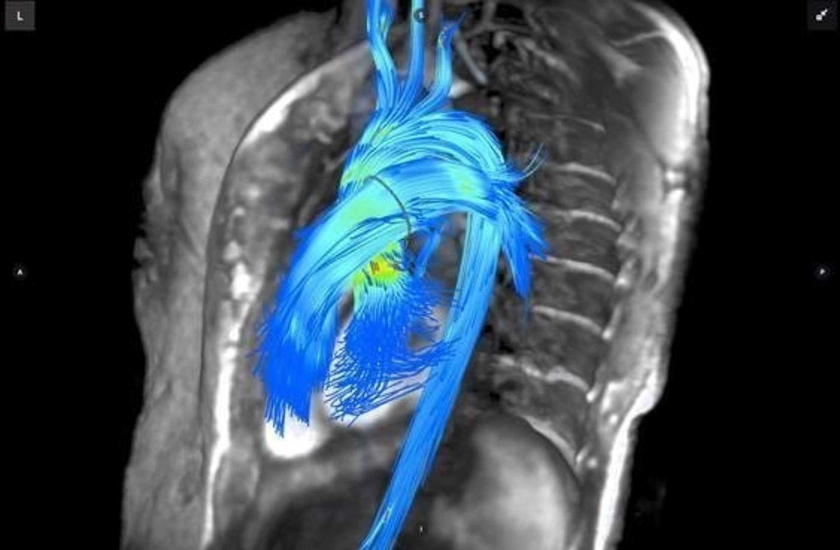 Arterys to Showcase New, FDA Cleared 4D Flow Software Platform at RSNA 2016