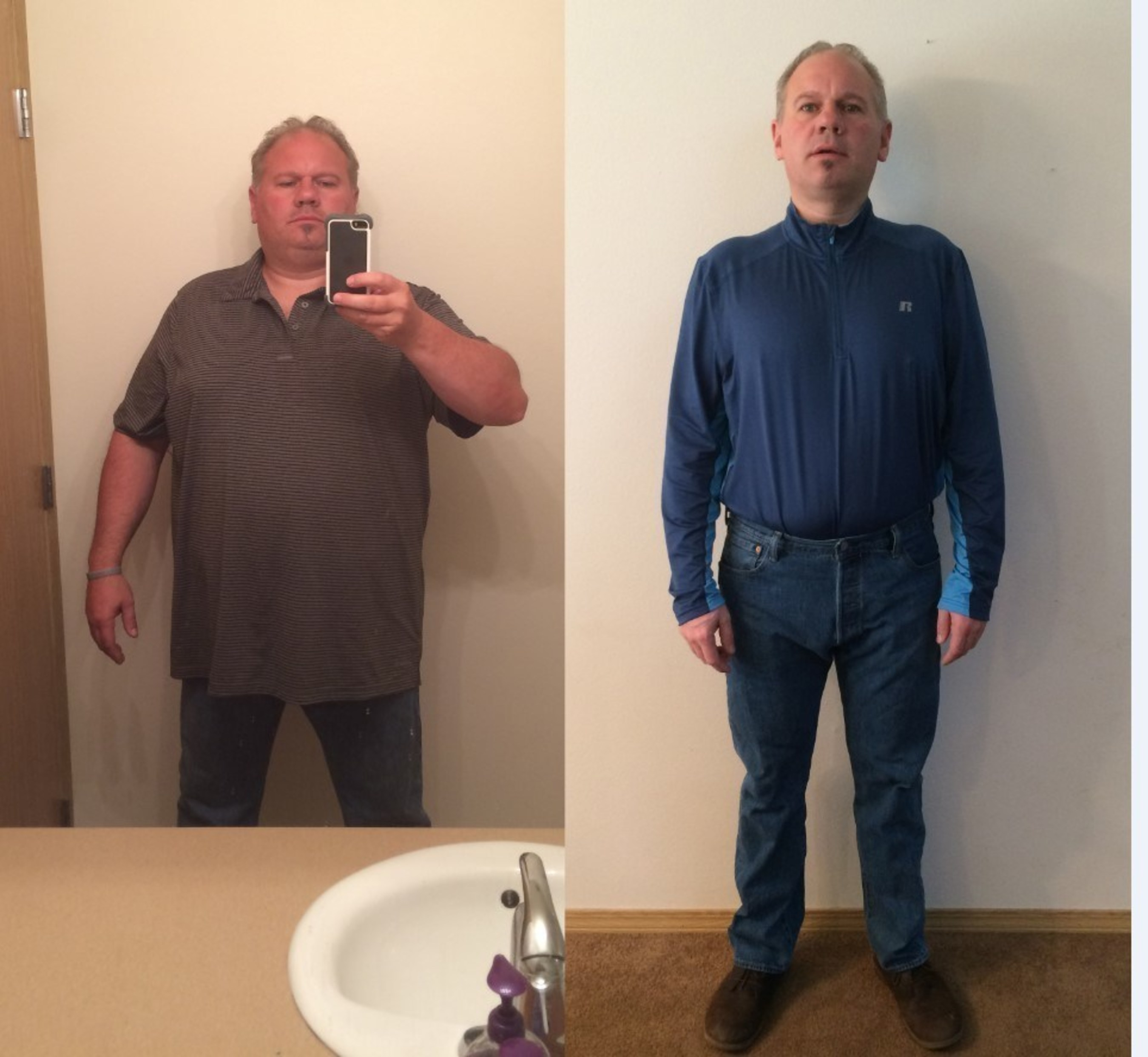 Charlie has lost 81 pounds in 12 months and credits ReShape for his renewed health and quality of life.