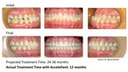 Dr. Manal Ibrahim of Innovative Orthodontic Centers in Naperville, Illinois, accelerated the treatment of this 43-year-old female patient with AcceleDent, the first and only FDA-cleared vibratory device that has been clinically proven to speed up braces and aligner treatment by as much as 50 percent and reduce the discomfort associated with orthodontic treatment. The patient presented as a class III with complete anterior crossbite and bilateral posterior crossbite. She completed accelerated orthodontic...