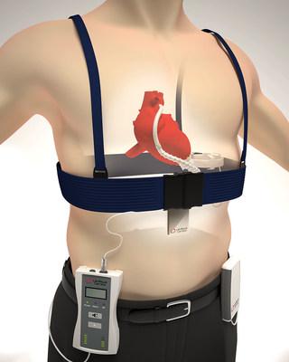 Leviticus Cardio's proprietary wireless, Coplanar Energy Transfer (CET) technology