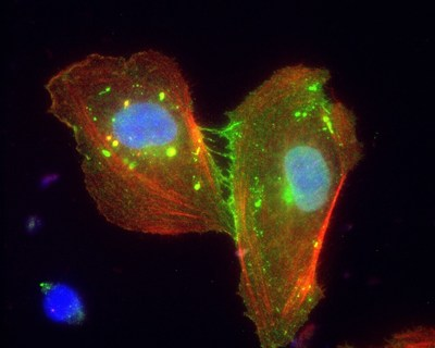 This image shows the few, remaining fragments of a blood vessel cell layer that has been dismantled by malaria parasites. Green beta catenin and its partners can no longer hold the cells together and look like stretched out threads in a torn seam.