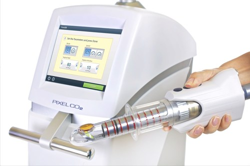 """FemiLift Smart Probe- for homogeneous & fast treatment.  This innovative new robotic probe incorporates """"smart technology"""" allowing practitioners to provide fast and homogeneous treatments. (PRNewsFoto/Alma Surgical)"""