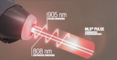 MLS Laser Therapy pulse (PRNewsFoto/ASA Srl)