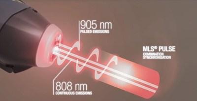 MLS Laser Therapy pulse (PRNewsFoto/ASA Srl)