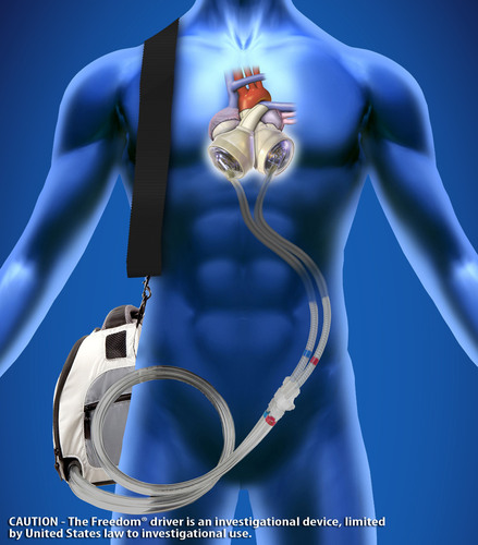 The SynCardia temporary Total Artificial Heart powered by the Freedom(R) portable driver is becoming the new standard of care for end-stage heart failure affecting both sides of the heart (biventricular failure).  (PRNewsFoto/SynCardia Systems, Inc.)