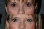 Before and After Dr. Andrew Jacono's Orbital Fat Transposition Procedure.