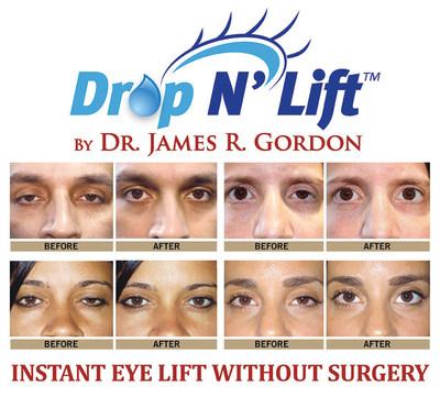 Dr. James R. Gordon Unveils Drop N' Lift(TM) - Instant Eye Lift Without Surgery