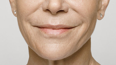 AFTER - 59-year-old patient treated with Restylane(R) Silk and Restylane-L(R). Treatment included: 2.8 ml of Restylane(R) Silk in the lips in perioral lines and 1ml of Restylane-L(R) in the nasolabial folds.