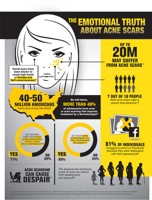 Suneva Medical Partners with the National Association for Self-Esteem to Educate Consumers on the Emotional Impacts of Acne Scarring.  (PRNewsFoto/Suneva Medical, Inc.)