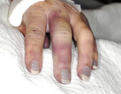 Gouty Arthritis: A Photo Essay.  (PRNewsFoto/UBM Medica US, Gregory Ruteck)