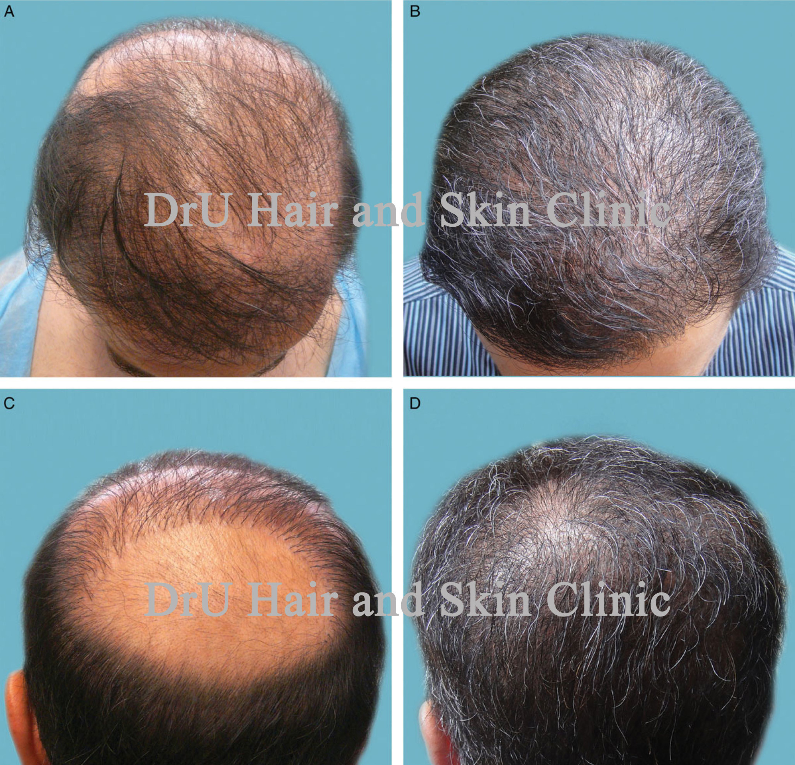 The results of UGraft by Dr. Sanusi Umar, before and after actual patient photos