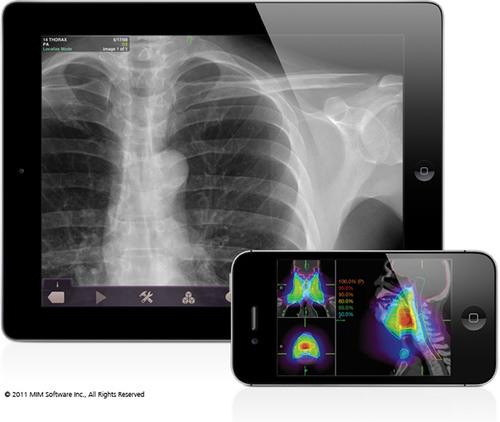 MIM Software's radiological display software for iPad and iPhone. Image supplied by MIM Software Inc.  ...