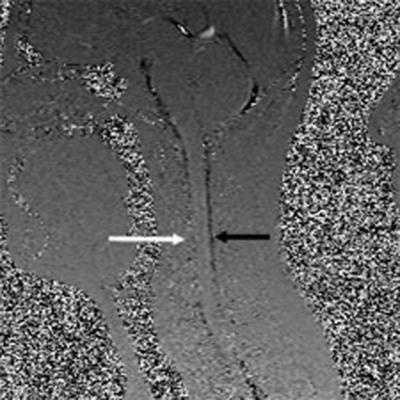 Figure 6b. MS Patient #6. Upright Sagittal CSF Flow.