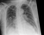 Gridless chest radiograph with standard processing