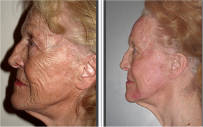 Alma Lasers Pixel RF Results- One Month Post Treatment.  (PRNewsFoto/Alma Lasers)