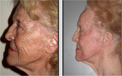 Alma Lasers Pixel RF Results- One Month Post Treatment.  (PRNewsFoto/Alma Lasers)